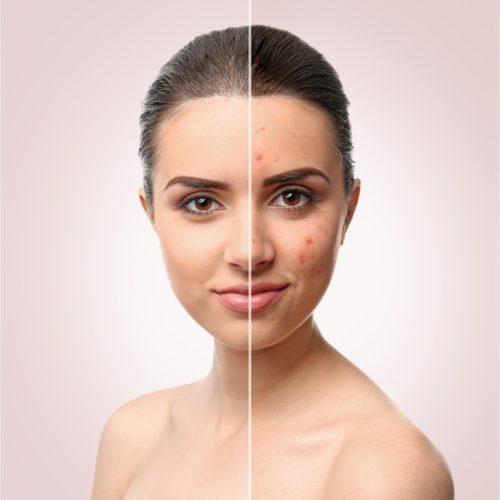 Acné / Vette huid